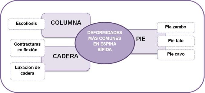 Las 6 deformidades más comunes en Espina Bífida